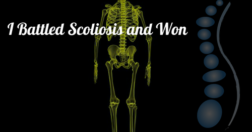 What Is Scoliosis -- And Can I Do Something About It?